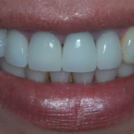 Metal Free Crowns